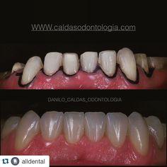 Ceramic veneer! TPD Eduardo Godoy #odontologiaestetica #health #saúde #estética #odontologia #makrofotografia #saude #faceta #resincomposite #resin #resina #resinacomposta #composite #veneer #dentist #dentista #odontologia #odontologiaestetica #estetica #estheticdentistry #curitiba #biomimetic @charlesmelo_odontologia @margarida_pagani @juarezgarcia_endodontia @dr.battilani @dentistry_forum @dentistrymyworld @instagram @goeb_odontologia #goeb_odontologia #odontologiaporamor…