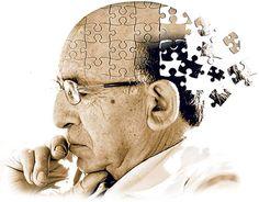 doenca-de-alzheimer