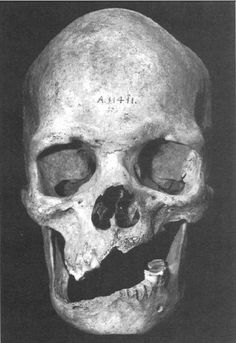 Skull showing damage from a sword wound, found on an archeological site near the Stewart river, Queensland, Australia.