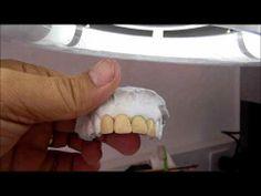 Portugues Porcelana pura Ceramco - TOP studio dental