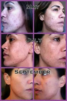 Rodan + Fields Dermatology Before and after pictures of ourUnblemish regimen http://kiannskincare.myrandf.com