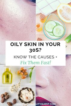 Oily and acne prone skin is not a rare sight in women around 30 years old. If…