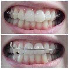 Clear retainers: Teeth straightening beyond braces - Orthodontist Dental Braces, Teeth Braces, Dental Care, Braces Retainer, Clear Retainers, Misaligned Teeth, Dental Aesthetics, Teeth Whitening Diy, Brace Face