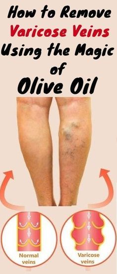 How to Remove Varicose Veins Using the Magic of Olive Oil – Healthy Life Fitness Varicose Vein Removal, Varicose Vein Remedy, Varicose Veins, Natural Treatments, Natural Remedies, Acne Remedies, Sagging Skin, Cellulite, Home Remedies