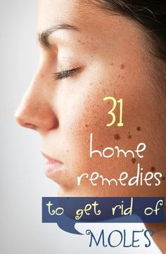Home remedies for moles can actually get you rid of these unsightly skin lesions more effectively without leaving scars