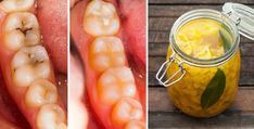 How to Heal Tooth Decay & Cavities Naturally With 3 Simple and Effective Home Remedies