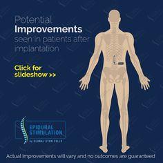 Este tratamento inovador é baseado no dispositivo de estimulação epidural. Não é um estimulador muscular ou algum tipo de controle de dor. O aparelho é cirurgicamente conectado ao sistema nervoso. …