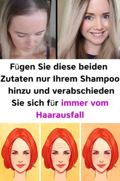Just add these two ingredients to your shampoo and say goodbye to hair loss loss forever - Devonge Hair Loss, Most Beautiful Pictures, Beauty Hacks, Told You So, Tips, Parenting, Motivation, Fitness, Classy Hairstyles
