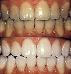 Безопасные способы отбеливания зубов в домашних условиях.