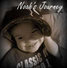 Noah has Kleefstra Syndrome. A deletion on his chromosome ( deletion)… – Hidradenitis Suppurativa Treatment Global Developmental Delay, Developmental Delays, Chromosomal Disorders, Ventricular Septal Defect, Rare Genetic Disorders, Ear Infection, Epilepsy, Special Needs, Genetics