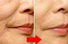 Las arrugas son inevitables con el tiempo. Pero también es cierto que existen muchas formas de combatirlas, varias de ellas totalmente naturales y al alcance de la mano de cualquiera. Aprovecha los beneficios de la aloe vera o sábila en la piel y combate las arrugas con esta mascarilla. U