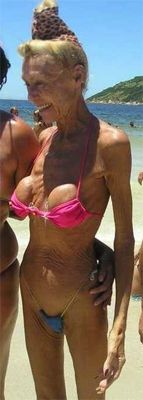 Yep!  That what those implants are gonna look like someday girls!!!!