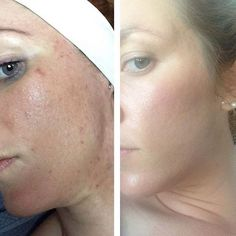 The original GREEN PEEL® herbal peeling by Dr. Schrammek is a proven problem solver for a variety of skin conditions.