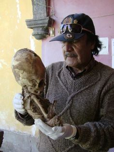 Riquelme Davila explained that the body is 50 inches tall, triangular head, eye cavity too large, open fontanelle, which is only characteristic of children up to 1 year and has molars, which show that there is a tremendous gap that is not common in humans. The head is almost the size of body and thought it was a kid but Spanish and Russian doctors  confirmed that indeed is an extraterrestrial