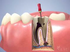 Watch the 10 best endodontic courses online at http://www.towniecentral.com/Dentaltown/onlinece.aspx?action=RESULTS=1=22 #dental #endododontics #smile