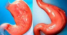 ¿Cómo reducir tu estómago sin cirugía de forma 100% natural? - TuSalud.Info