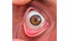 Regrettably, conditions related to the eyeball can happen and cause specific great pain and discomfort. One of those conditions is the formation of a cyst on the eyeball. For that reason, it is necessary to understand what causes cysts on the eyeball, what are the symptoms and what is the treatment? Good eyesight is an …
