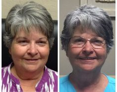 Kathy before and after thyroid weight loss