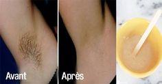 Découvrez deux astuces naturelles pour vous aider à vous débarrasser des poils indésirables définitivement