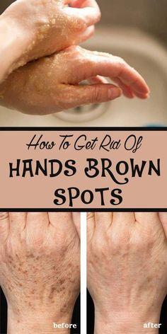 DIY  Masque   : Recettes de soins de la peau bricolage: Comment se débarrasser des mains taches brunes