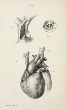 Forms of obstruction at the orifice of the pulmonary artery, with irregular course of the aorta. On Malformations of the Human Heart With Original Cases and Illustrations. Thomas B. Peacock, 1866.