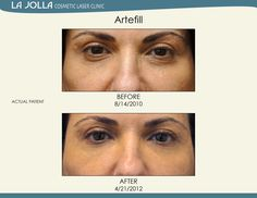 Patient treated with Artefill at La Jolla Cosmetic Laser Clinic. Under Eye Fillers, Under Eye Primer, Under Eye Makeup, Laser Clinics, Alcohol Free Toner, Happy Skin, Moisturizer With Spf, How To Apply Makeup, Combination Skin