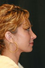 Are you looking for the Best Rhinoplasty Surgeon in Florida? Check http://www.youtube.com/watch?v=4KKTRzMHTB8  for ALL the info you need!
