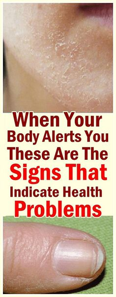 It is commonly known that our body system is in constant action. A lot of changes occur all the time and if something odd happens Herbal Remedies, Natural Remedies, Holistic Remedies, Health And Nutrition, Health Fitness, Health Tips, Health Care, Side Fat, 2 Week Diet