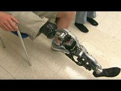 "(adsbygoogle = window.adsbygoogle || []).push();           (adsbygoogle = window.adsbygoogle || []).push();  Doctors hope to make so called ""smart"" prostheses available to patients, including Iraq war amputees, in about 3-5 years. source #usa #news #worldnews..."
