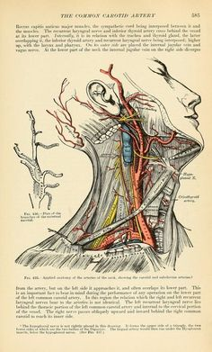"""The Common Carotid Artery"" (Gray's Anatomy) Anatomy Art, Human Anatomy, Greys Anatomy, Black Coffee Benefits, Natural Remedies For Gout, Carotid Artery, Health And Fitness Magazine, Health Fitness, Health Exercise"