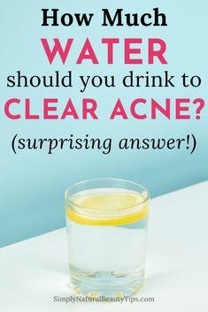 Acne Drink, Detox Water For Clear Skin, Quick Detox, Spearmint Tea, Detox Tips, Hormonal Acne, How To Get Rid Of Acne, Lemon Water, Detox Drinks