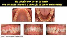 Má oclusão de Classe I de Angle, com ausência congênita e impacção de dentes permanentes | OVI Dental