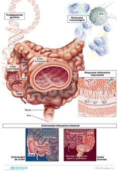 próstata aqua acquaviva delle fontina cirugía