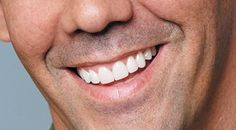 View and rate Dr. Burns' work on Rankipedia. cosmetic :  http://www.rankipedia.com/dentist/dentistprofile/Dr-Jerry-Burns-DDS-Sun-City-West/85375/id/6019