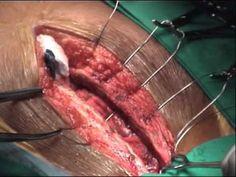 dr adnan rcheid open heart surgery