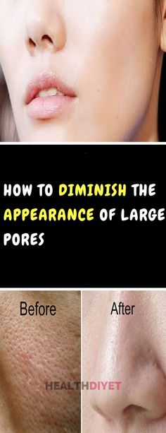 HOW TO DIMINISH THE APPEARANCE OF LARGE PORES