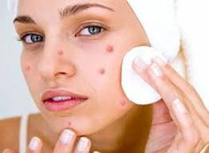 Anxious to know how to get rid of a Pimple overnight! Well, there are a variety of natural as well as usual remedies that tend to heal Pimples Immediately possible. Read further and discern ways on how to get rid of Pimples overnight.