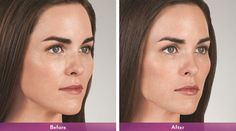Juvederm Volbella® XC is one of the most recent additions to the collection—tailored to add subtle volume to the lips and smooth the appearance of vertical lip lines. Facial Fillers, Botox Fillers, Dermal Fillers, Lip Fillers, Lip Injections, Lip Plumper, Lip Art, Fractional Laser Treatment, Relleno Facial