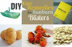 Easy Remedies for Sunburn Blisters