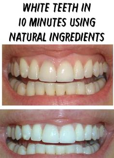 You look in the mirror and you notice that you don't have white teeth? I suggest you some natural and simple remedies that even our grandmothers used them!