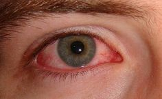 pink eye conjunctivitis home remedies  -- pin now ; read later, just incase i ever get it again lol :P