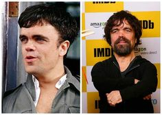 Cast of Games of Thrones: Then and Now #Peter Dinklage