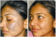 Nevus of ota' is in general a congenital condition. This usually means that the person suffering from this medical condition is born with the same. In nevus of ota, dark pigmented cells accumulate in the facial tissues mostly surrounding the eyes. This results in appearance of greyish and bluish colouration in this region.  Visit here for more: http://www.olivaclinic.com/blog/treating-nevus-of-ota/