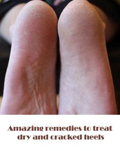DIY – Amazing remedies to treat dry and cracked heels