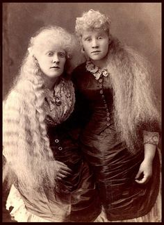 THE LONG HAIRED ALBINO BABES OF BARNUM'S BIZARRE BAZAAR -- Florence and Mary Martin.  Employed by the circus in the 1880's.