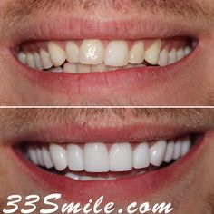 21 teeth total for the books! We are all thrilled with the result! #drjamsmiles #33Smile . . All photos and video of patients are of our actual patients. All media is the of Cosmetic Dental Associates. Any use of media contained herein is prohibited without written consent. . . #satx #satxdentist #dentistry #goals #smile #teeth #instagoals #transformationtuesday #beforeandafter #whiteteeth #perfect #transformation #teethwhitening #veneers #Invisalign #porcelainveneers #sanantonio… Insta Goals, Porcelain Veneers, Dental Cosmetics, Smile Teeth, Dental Procedures, Cosmetic Dentistry, Transformation Tuesday, Orthodontics, Beautiful Smile