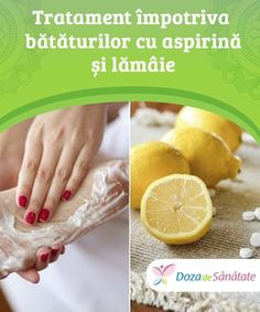Health Tips, Lemon, Health Fitness, Diy Crafts, Medicine, Aspirin, Varicose Veins, The Body, Health And Fitness