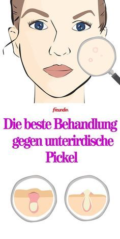 Treat subterranean pimples: That& how it works- Unterirdische Pickel behandeln: So geht's Underground pimples are well below the skin surface, so they need special treatment - Beauty Care, Diy Beauty, Beauty Skin, Beauty Hacks, Star Beauty, Beauty Ideas, Brown Spots On Face, Skin Tips, Feelings