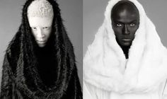 Shaun Ross, My Black Is Beautiful, Beautiful People, Modelo Albino, Yen Yang, Vitiligo Treatment, Skin Grafting, Photo D Art, Afro Punk