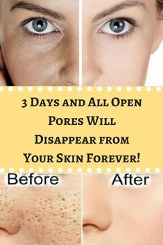 How to Make Your Pores Look Smaller